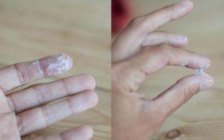 Типы выделений при молочнице и на что они указывают