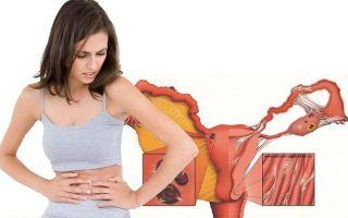 Причины липких выделений у женщин и нужно ли их лечить?