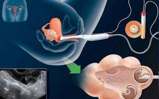 Виды выделений после эко и подсадки эмбриона