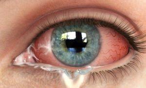 Виды и причины появления выделений в уголках глаз