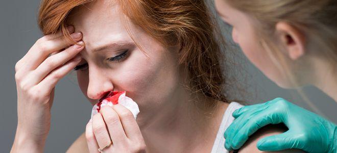 Почему идет кровь из носа при месячных, нужно ли бить тревогу?
