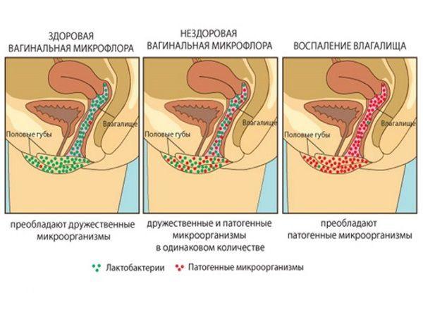 Вагинальная микрофлора