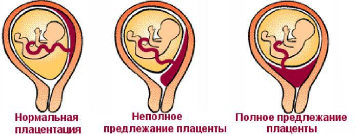 Предлежание плаценты