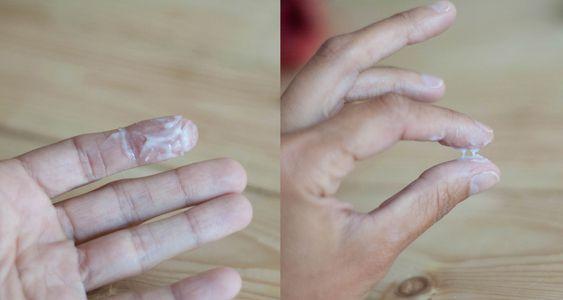Выделения при хронической молочнице - Все про молочницу